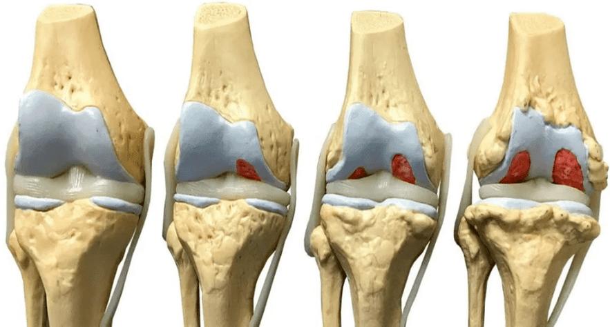 articulațiile au devenit dureroase după îndepărtarea glandei tiroide